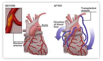 coronary-artery-bypass-grafting