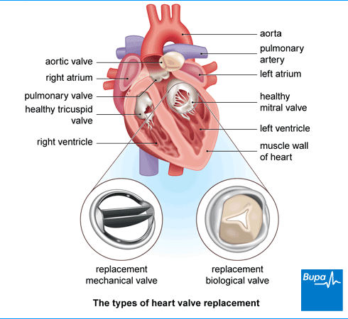 Heart Valve Replacement Types